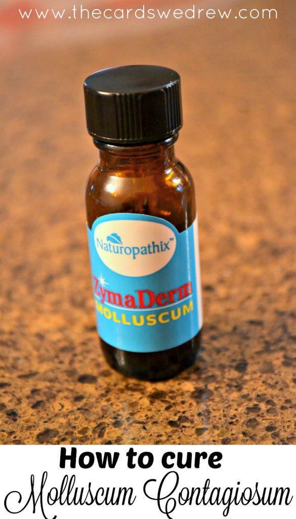 how to cure molluscum contagiosum